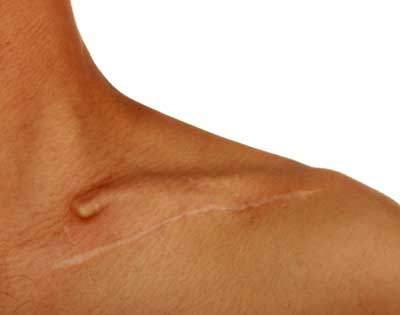 Cicatrices interfirentes